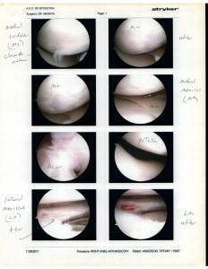 11-28-11 Knee Surgery 3