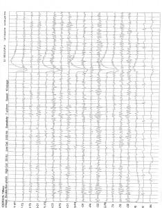 1-6-16 QME Report Bronshvag_Page_14
