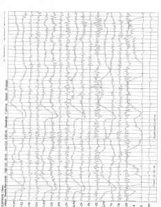 1-6-16 QME Report Bronshvag_Page_15