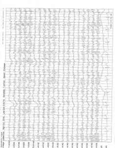 1-6-16 QME Report Bronshvag_Page_17