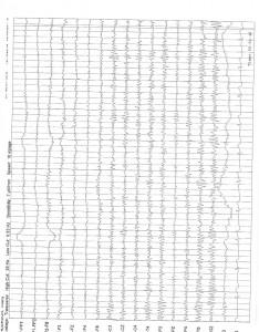 1-6-16 QME Report Bronshvag_Page_18